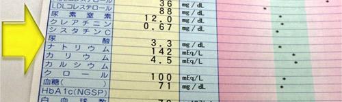 尿酸 血液 値 検査